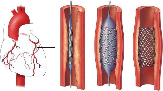 Сутью данной процедуры является создание дополнительного русла для притока крови, в обход патологических участков