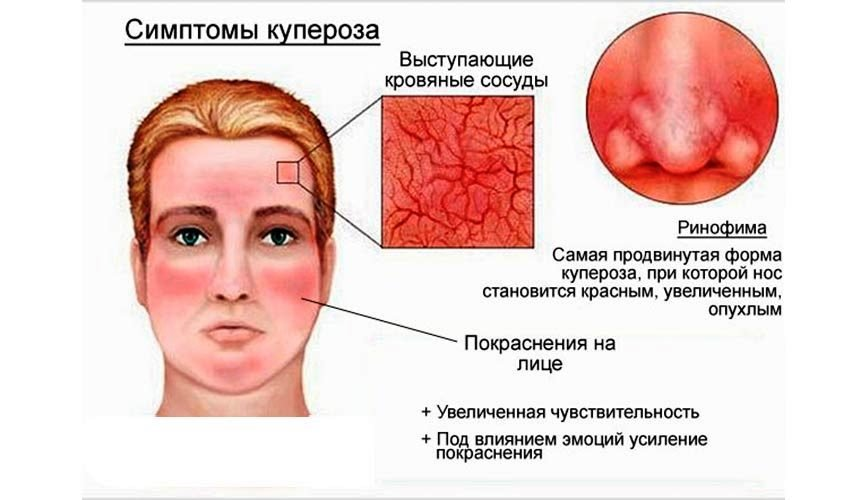 Проявление купероза