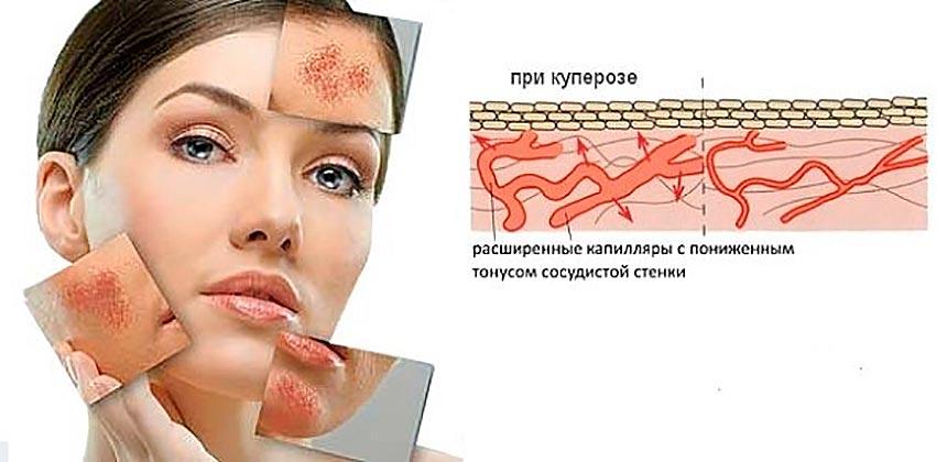 Диагностика купероза