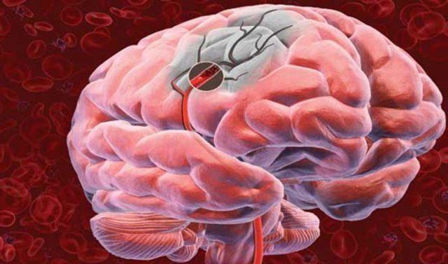 Сегодня атеросклероз можно встретить уже у сорокалетних пациентов