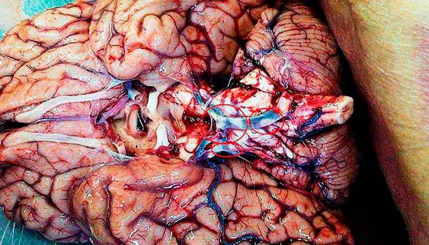 Головной мозг с атеросклерозом