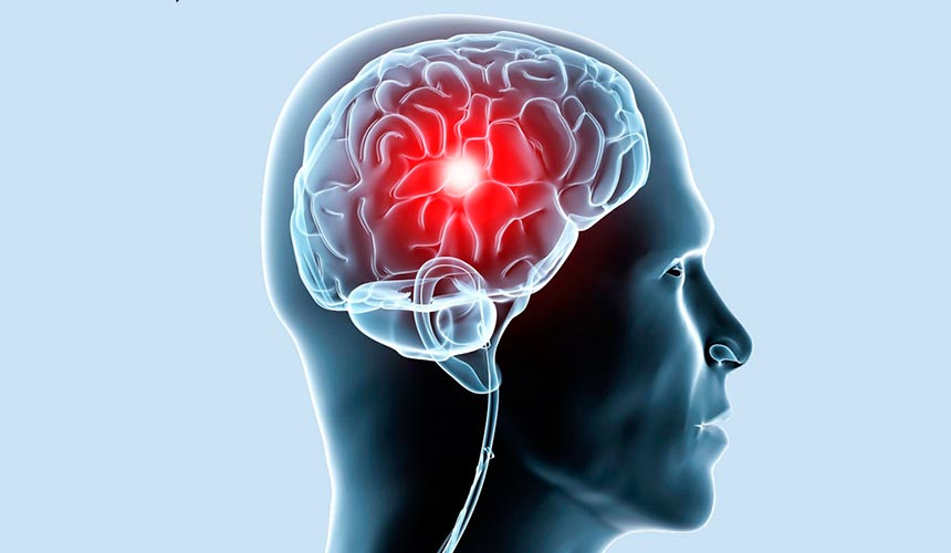 Медикаментозное лечение атеросклероза мозга