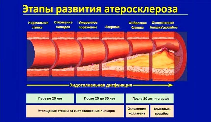 Облитерирующий атеросклероз артерий