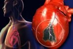 Инфаркт у мужчин и женщин