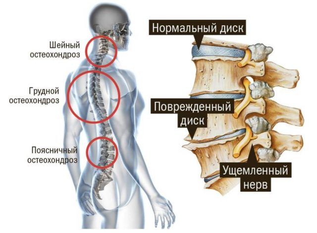 Один из симптомов остеохондроза грудного отдела – это боль в сердце