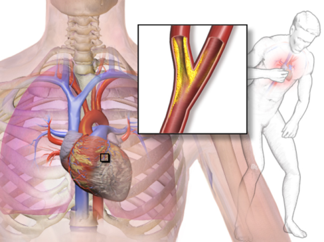 Дестабилизация течения заболевания может развиваться и вторично по внекардиальным причинам