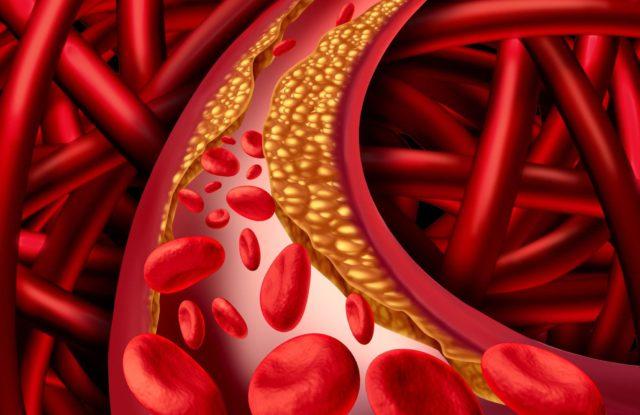 Основная причина дестабилизации течения стенокардии — пристеночный (неокклюзирующий) тромбоз коронарной артерии