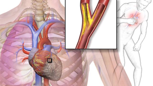 Для приступа стенокардии нужно, чтобы просвет коронарных артерий сократился до 50–75%