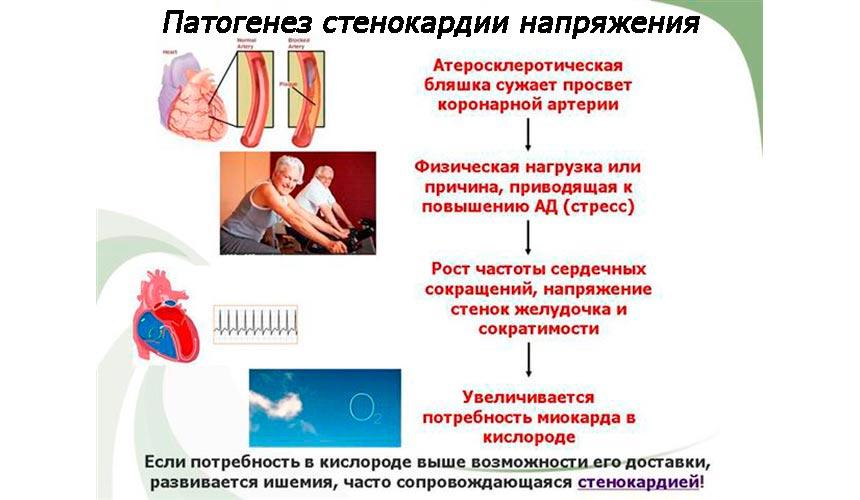 Патогенез стенокардии