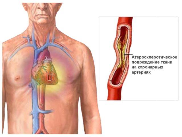 Приступ стенокардии развивается в условиях физического покоя