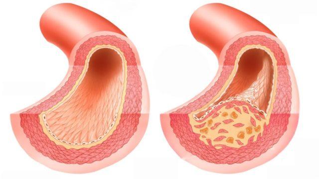 Спазм сосудистой стенки и уменьшение просвета коронарной артерии могут быть обусловлены повышением активности симпатической и парасимпатической нервной системы