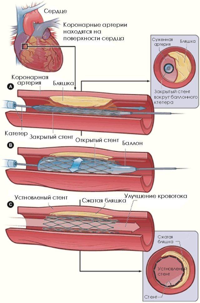 Аорто-коронарное шунтирование, ангиопластика и стентирование коронарных артерий