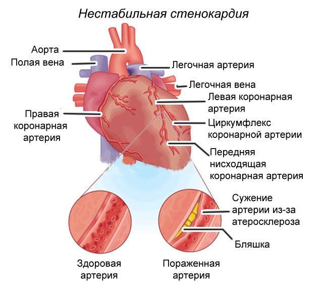 Вазоспастическая стенокардия получила свое название по имени американского кардиолога М. Принцметала