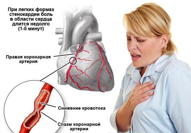 В некоторых ситуациях проявляется онемение/жжение – эти проявления боли считаются типичными