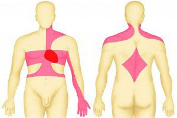 Если болевой синдром легкий, то затрагивает небольшой участок
