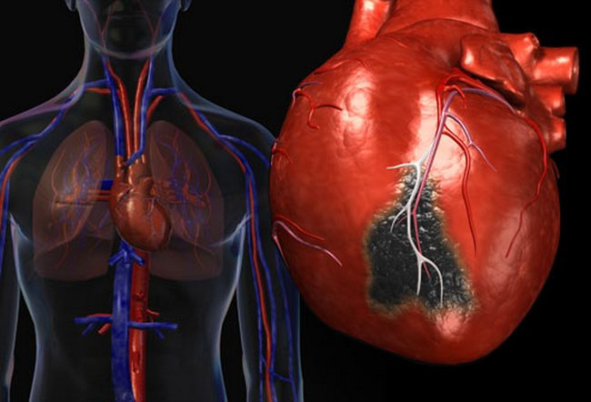 Если не принимать во внимание сердечные заболевания, то клиника, характерная для стенокардии, может развиться при многих патологических процессах