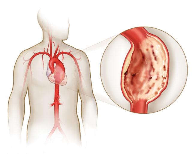 Для данного заболевания характерны появление сильной сжимающей боли за грудиной