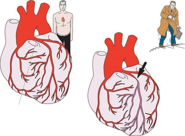 Данное заболевание развивается в результате ишемической болезни сердца — патологии, связанной с нарушением сердечного кровоснабжения