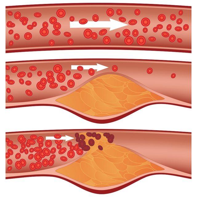 Ситуацию ишемической болезни сердца, основным проявлением которой является стенокардия, можно условно сравнить со старыми, заржавевшими трубами