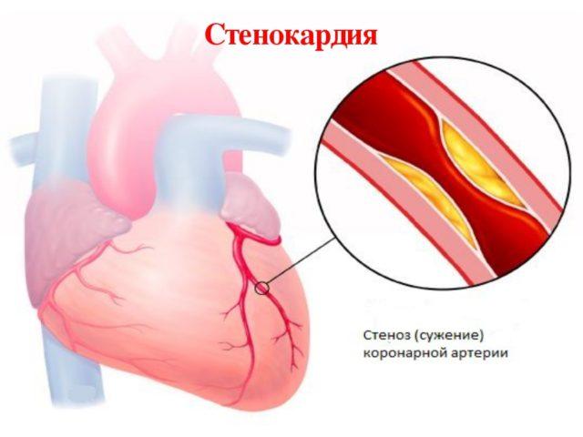 Стенокардитический синдром или просто стенокардия является проявлением ишемической болезни сердца