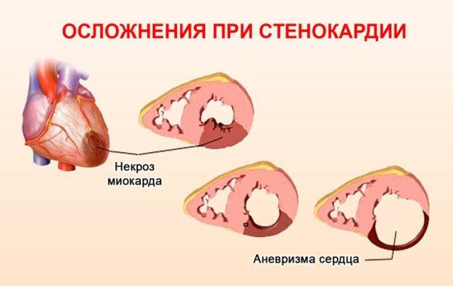 Кислородное голодание тканей сердца приводит к возникновению стенокардии