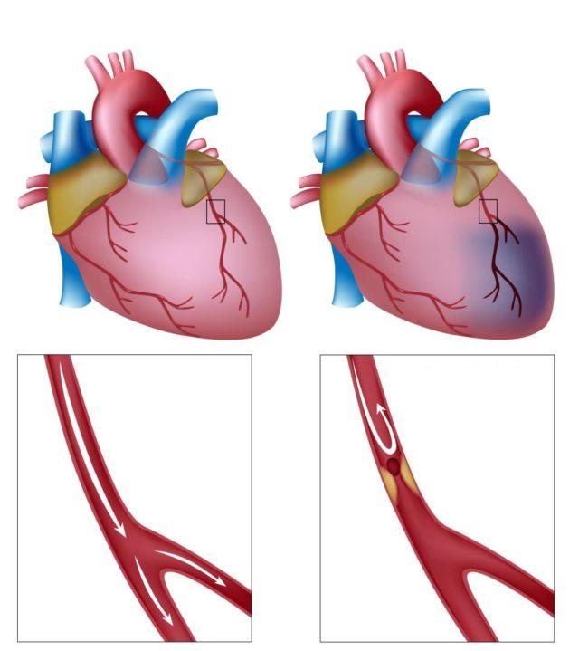 Особенностью недуга является отсутствие изменений в крупных артериях, питающих сердце, на фоне пораженных мелких коронарных сосудов