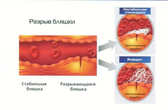 Гипоксические процессы препятствуют выведению непереработанных продуктов обмена веществ, а это приводит к появлению болевых ощущений в сердце