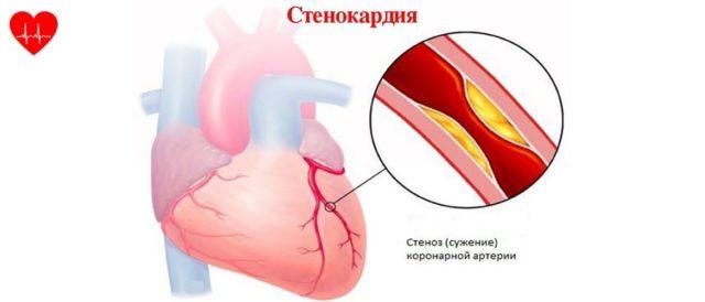 Оно может спровоцировать сердечный приступ даже без специфических внешних факторов