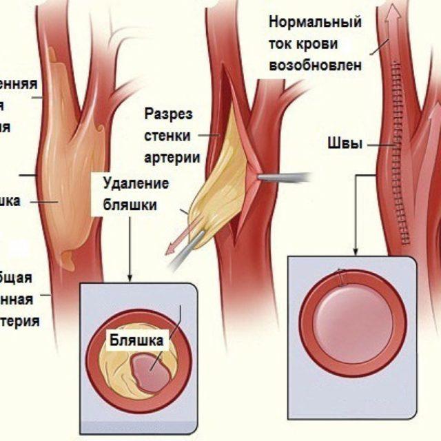 От атеросклероза страдают почти все кровеносные сосуды организма