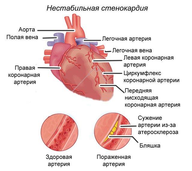 Такая проблема обусловлена недостаточным кровоснабжением сердца и называется стабильной стенокардией