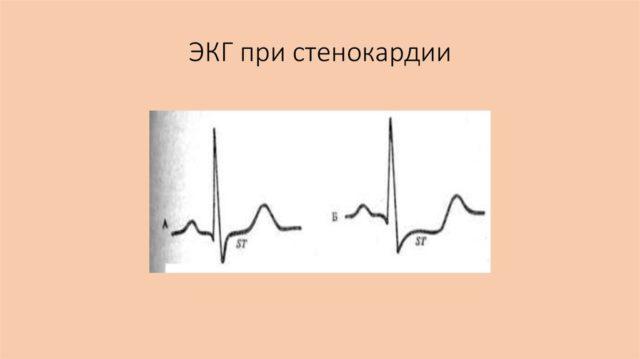 В момент приступа происходят изменения в миокарде или сосудах: случается спазм или резко растет потребность в кислороде