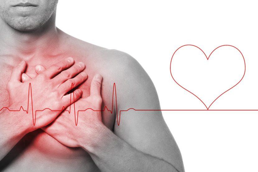 Пластырь для сердца при стенокардии