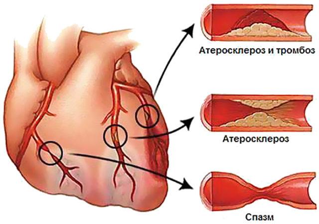 Различают несколько видов заболевания, отличающихся симптоматикой, но их объединяет боль, возникающая в области сердца