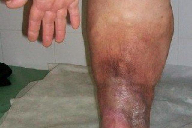 Как правило, они инфицированы и служат источником распространения инфекций, таких как флегмона, абсцесс, сепсис