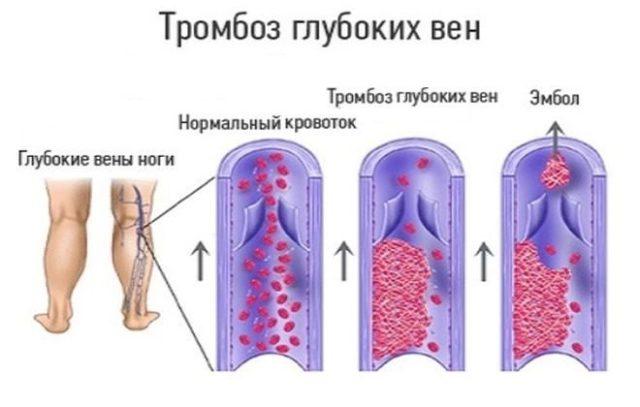 В основном тромбоз глубоких вен образуется в нижних конечностях