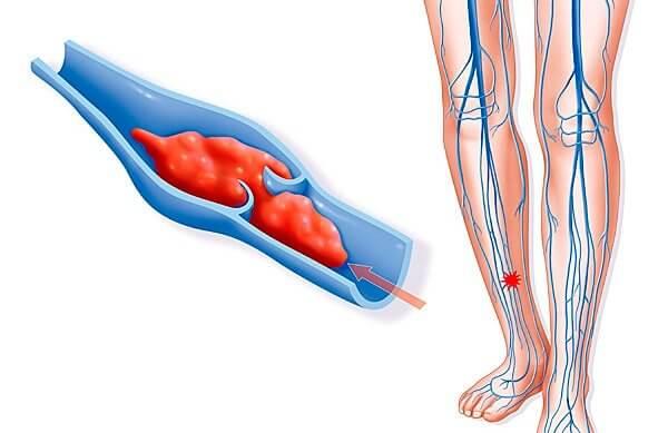 Тромб вызывает нарушение кровообращения, меняет структуру и размеры вен
