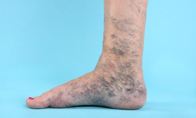 В 80% случаев болезнь протекает бессимптомно, но тромб может стать причиной смертельно-опасного осложнения – тромбоэмболии легочной артерии