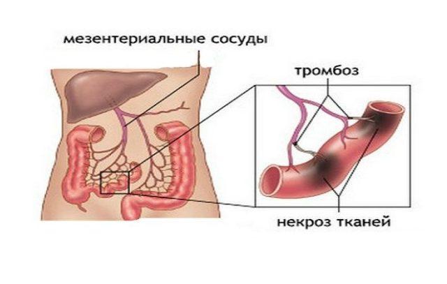 Мезентерий – это совокупность брыжеечных тяжей, с помощью которых органы брюшной полости крепятся к брюшной стенке