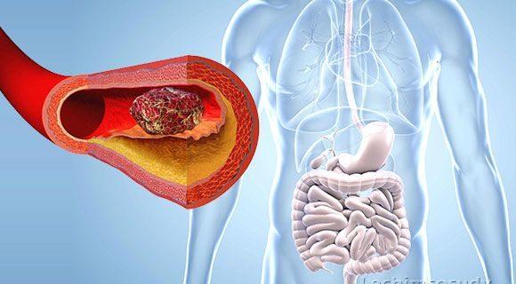 Независимо от того, в каком месте образовался тромб, он может закупорить любую артерию или вену, в том числе и мезентериальную